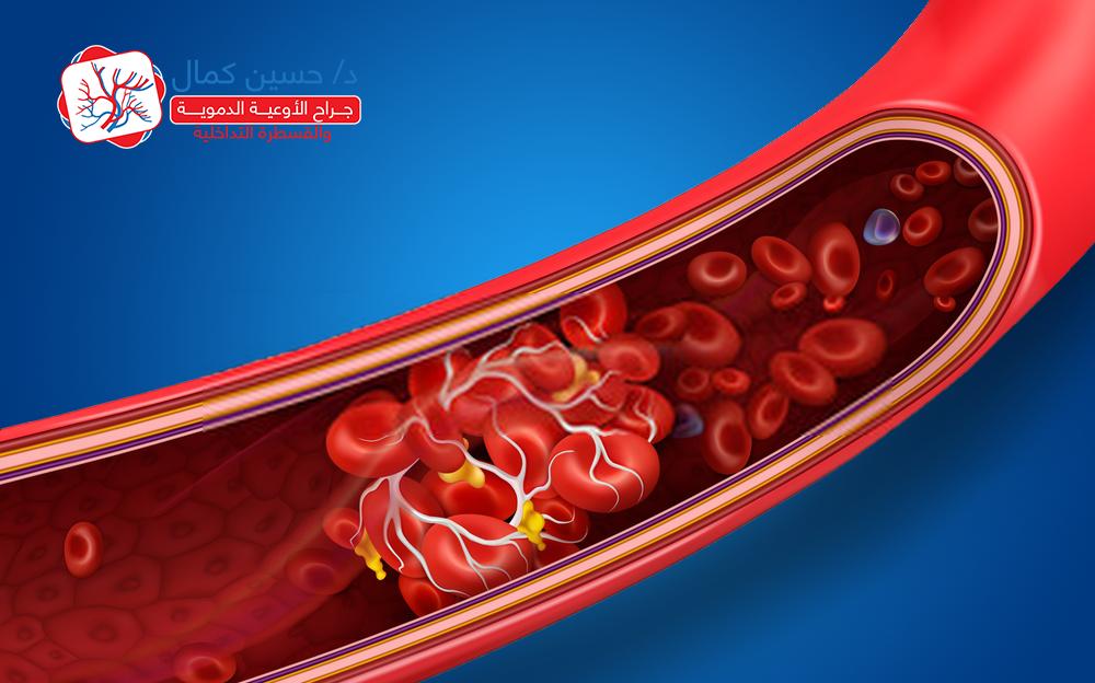 blood_clot