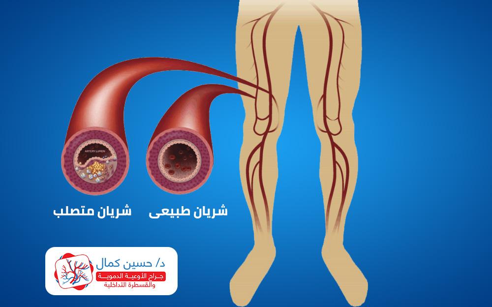 peripheral-arterial-blockage